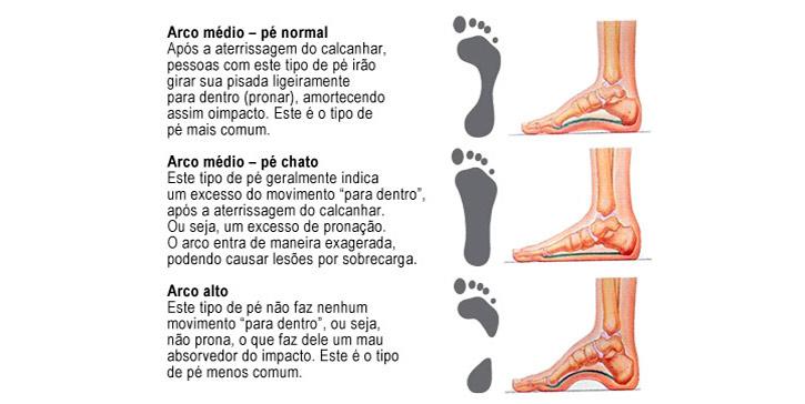 Tipos de arcos do pé
